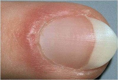 inflammation-around-nail03