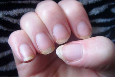 Holistic-Approach-To-Cure-Brittle-Nails